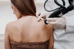 Rimozione di tumori benigni
